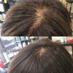 髪の悩みはトップがぺったんこ❣️