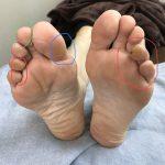 足裏に出来る角質は、何を教えてくれるの?