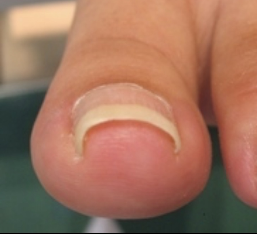 絶対に治しておきたい、『爪水虫』『巻き爪』