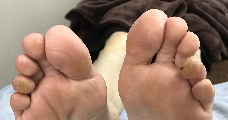 外反母趾の原因と予防法❣️