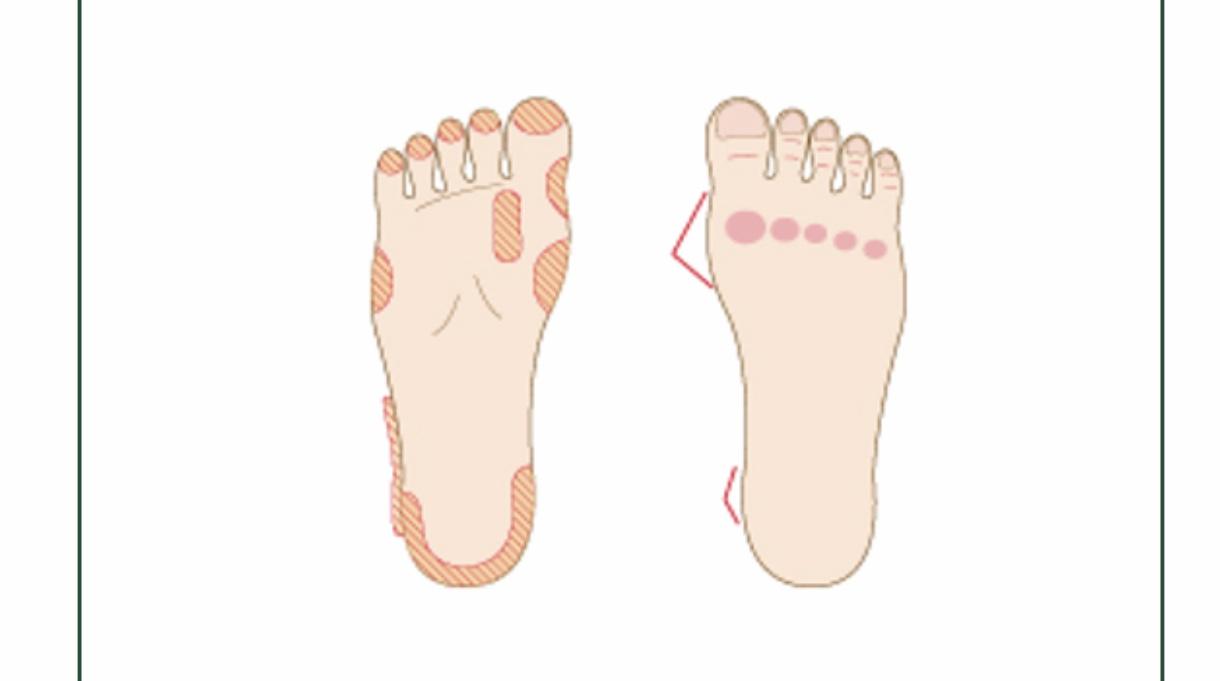 足が身体にとって重要だと、どれだけの人が気付いているだろうか?