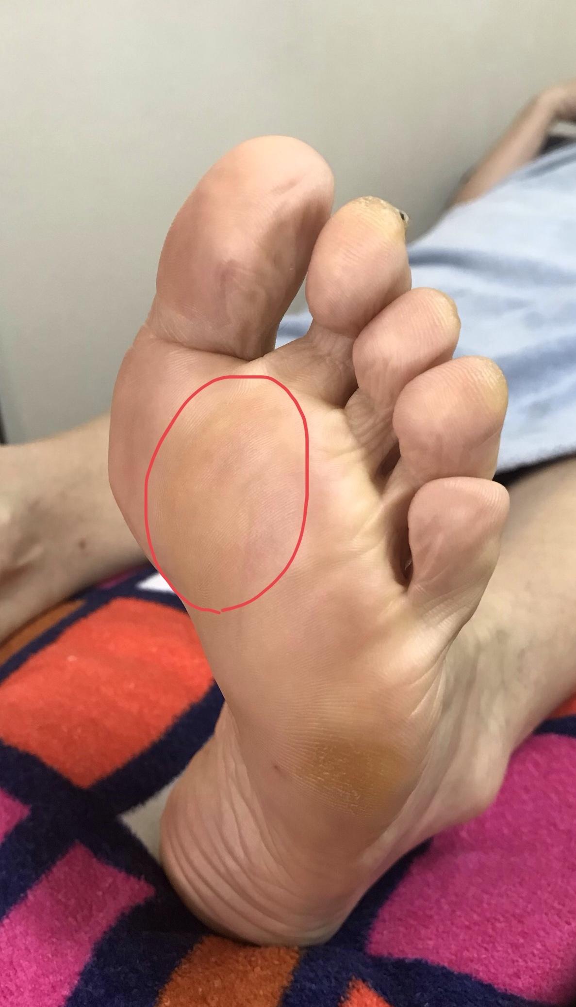 足に現れる身体のサイン…足裏の上部中央に角質、魚の目、タコ