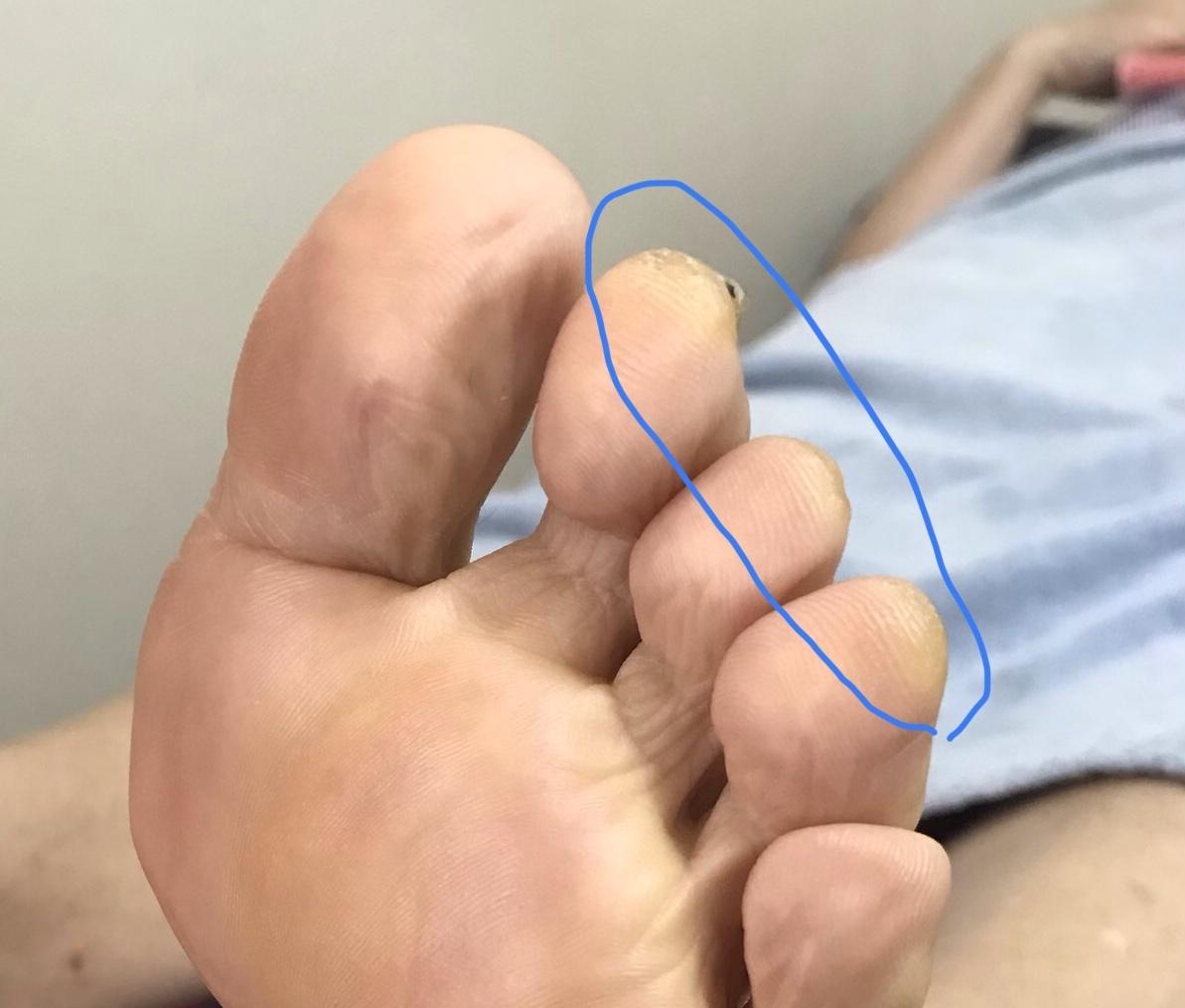 足に現れる身体のサイン…つま先
