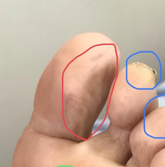身体からのサイン…親指