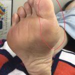 足に現れる身体のサイン…親指の外側側面に角質、その下に角質、親指の付け根に角質