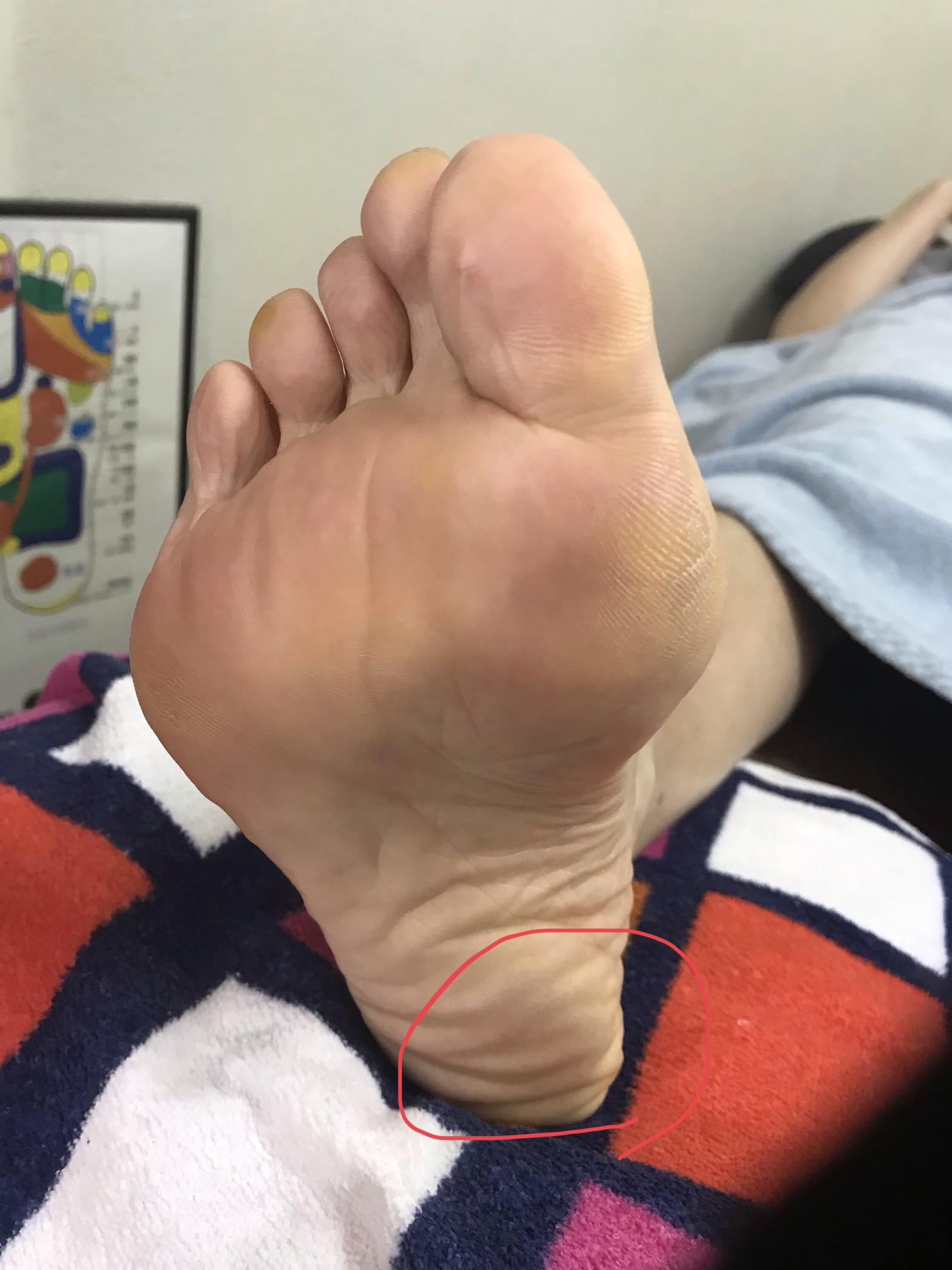 足に現れる身体のサイン…かかとに角質