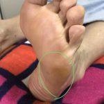 足に現れる身体のサイン…小指側の側面