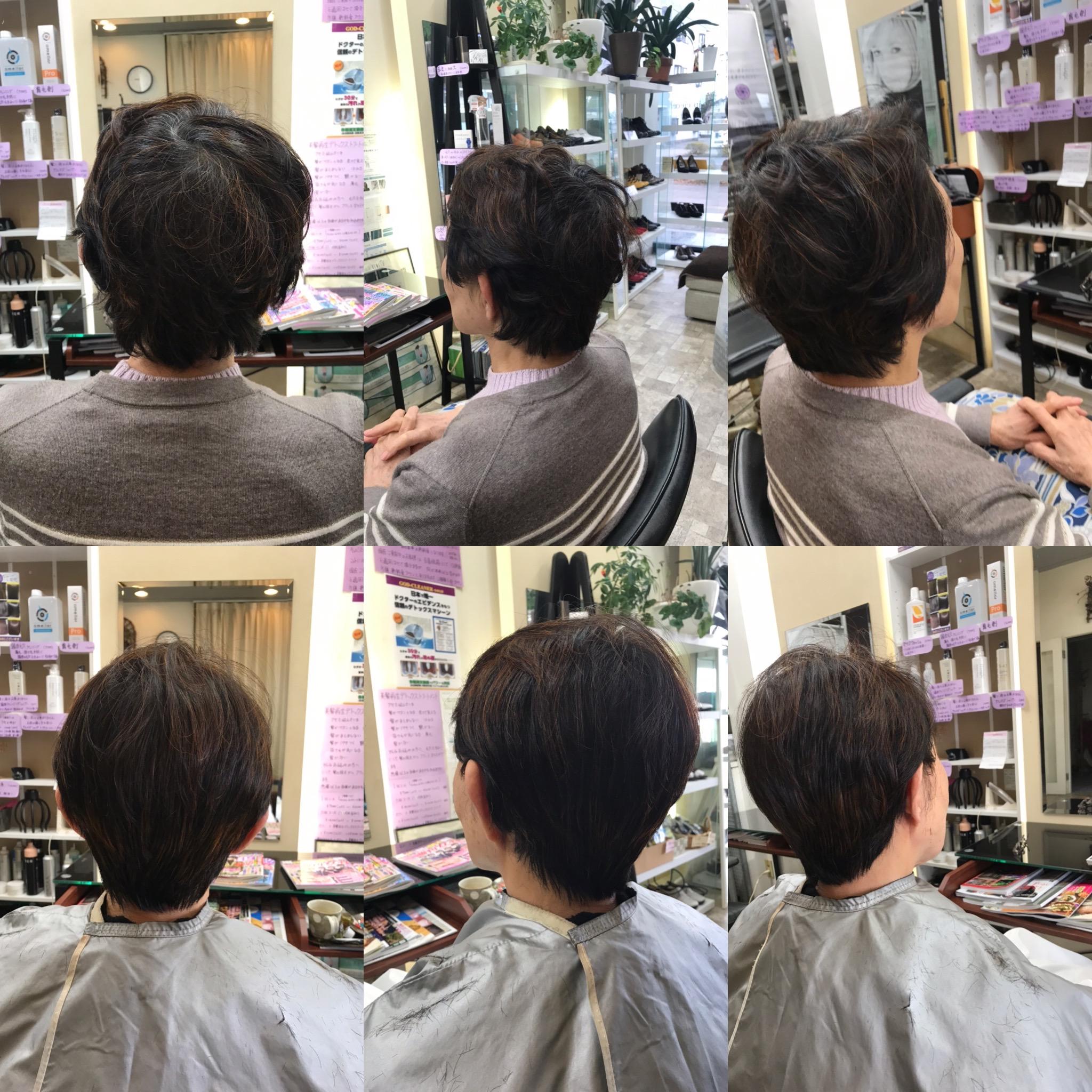 ある日突然アレルギー、70代後半の今、髪がフサフサなのは。