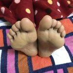 足に現れる歪みの症状