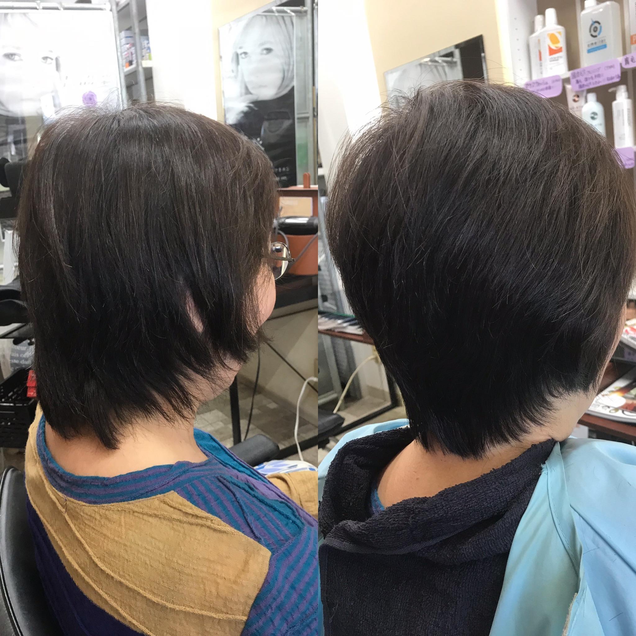 髪の悩みの原因