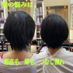 超直毛、薄毛、つむじ割れの悩み改善