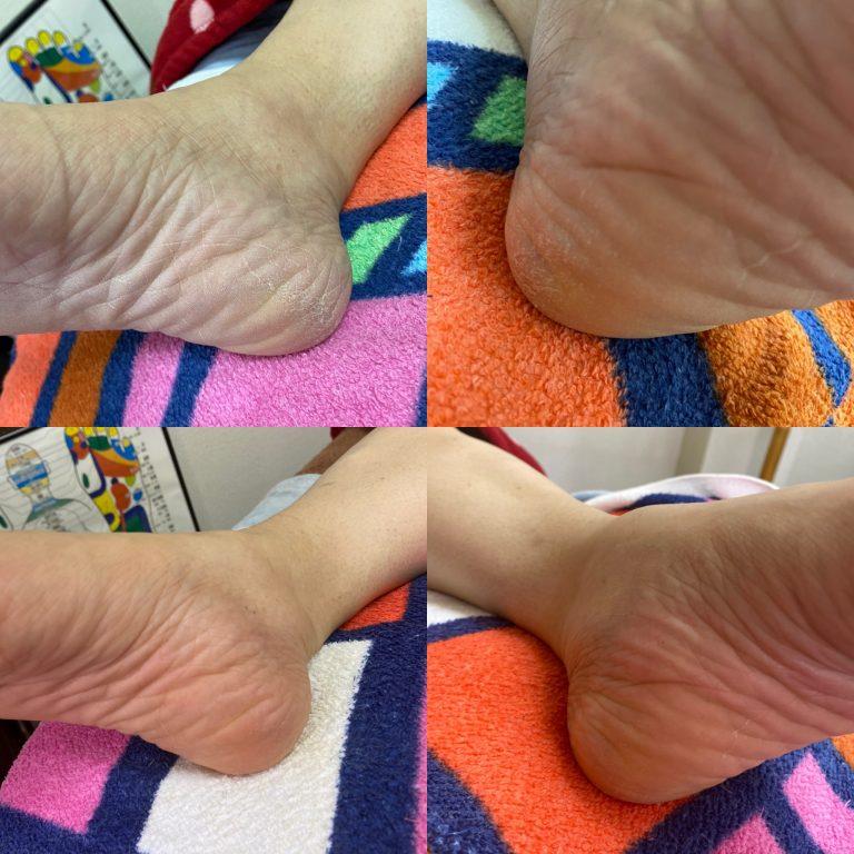 足の角質の変化