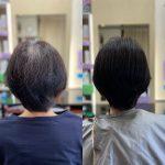 薄毛とくせ毛とつむじ割れ