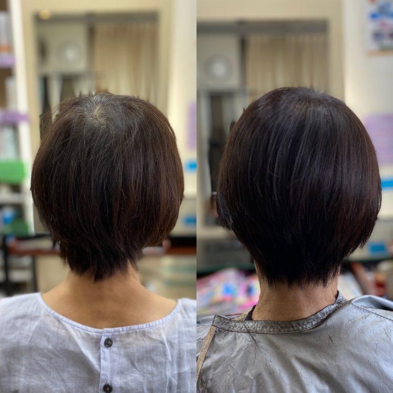 直毛で薄毛の悩み