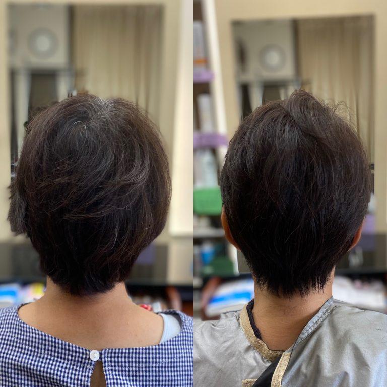 薄毛だけど、薄毛に見えない